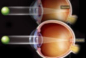 cirurgia refrativa, cirurgia miopia, cirurgia correção grau, cirurgia hipermetropia, correção grau, cirurgia a laser, lasik, prk, cirurgia oftalmologica, cirurgia olhos, miopia
