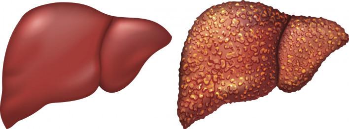 لاحظ كيف سظح الكبد الطبيهي أملس