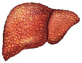 COPD-liver-hepatitis_cirrhosis.jpg