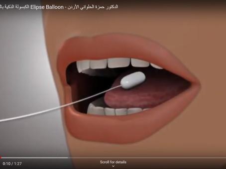 تخلص من السمنة دون جراحة عبر الكبسولة الذكية