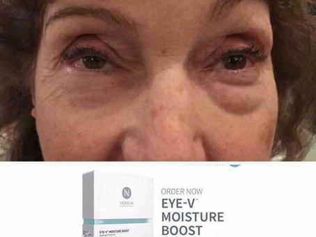 Allergy Eyes?