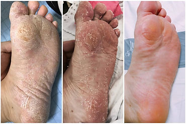 Before & After using Baby Foot