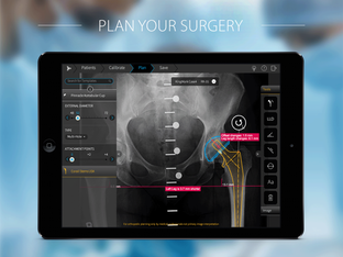 TraumaCad Mobile iPad app