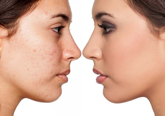 Tips from a Dermatologist: Acne Cleansers;