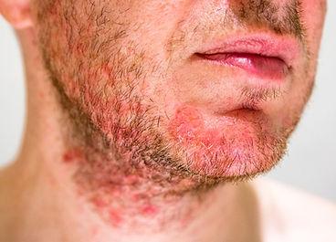 White male+facial seb derm iStock-103198
