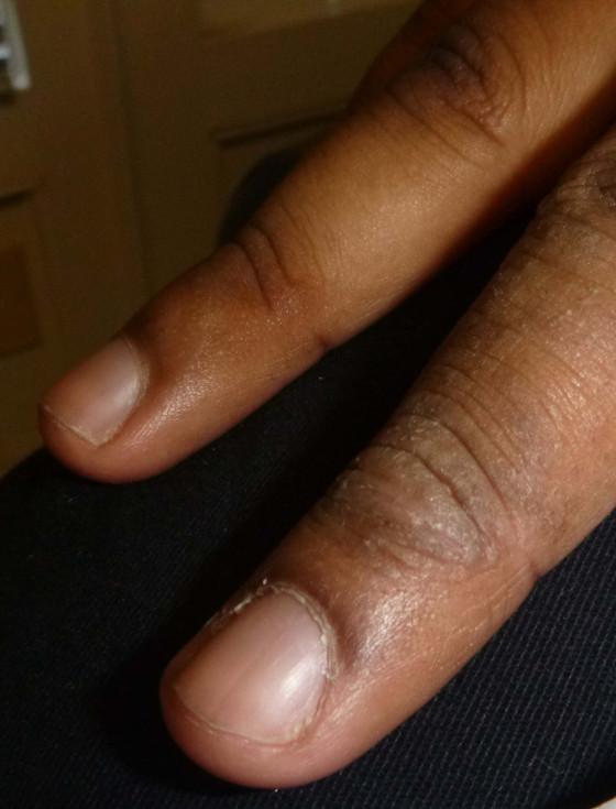Dry Skin and Eczema
