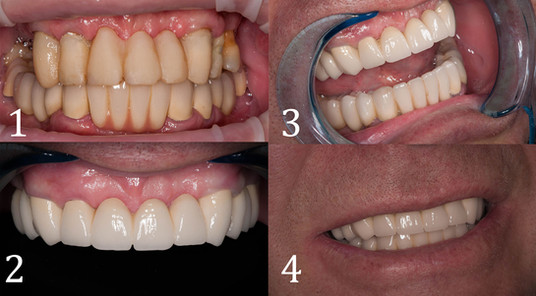 Тотальная реконструкция зубеных рядов с использованием металлокерамических коронок.