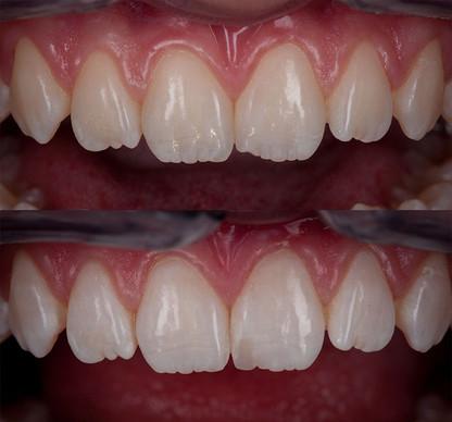 Малоинвазивный подход в реставрации скола центрального зуба.
