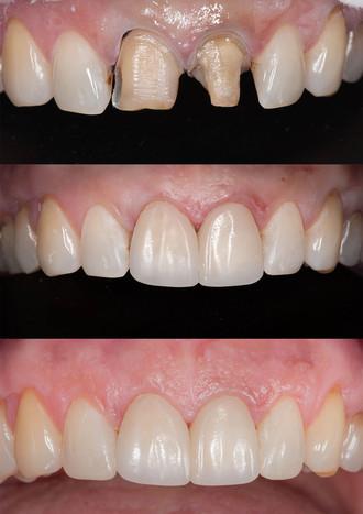 Эстетическая реставрация центральных зубов в одно посещение.