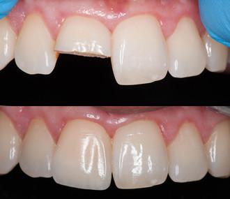 Травма центрального зуба. Проведена эстетическая реставрация в одно посещение.