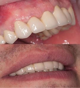 Тотальная реконструкция верхнего зубного ряда металлокерамическими коронками.