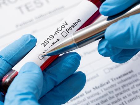 Saúde passa a testar casos leves de Covid-19