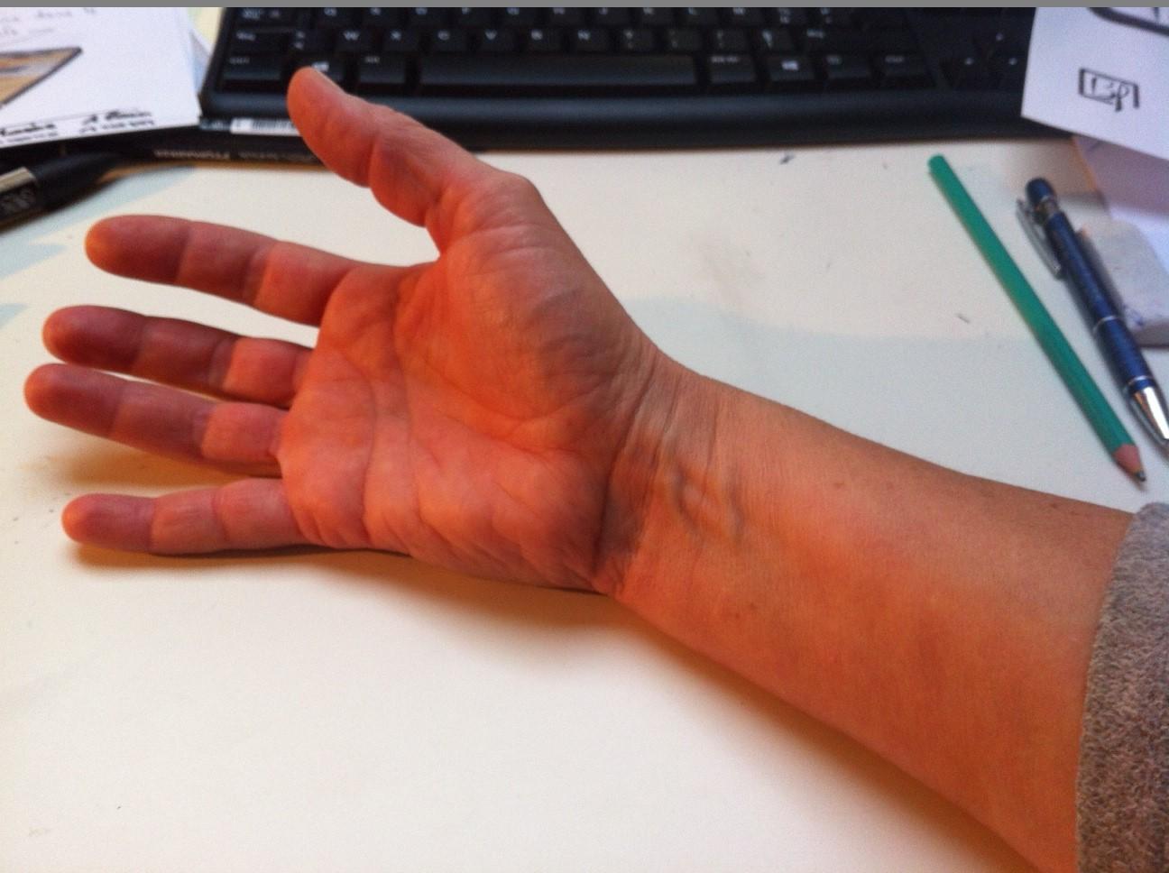 Les mains d'Alain