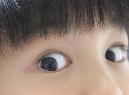 目のクセ・互い違いの動き