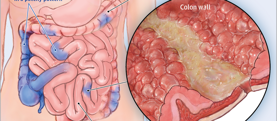 Lupus And Crohn's Disease Connection.