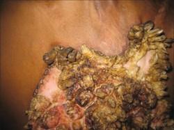 Hypertrophic Lupus Erythematosus