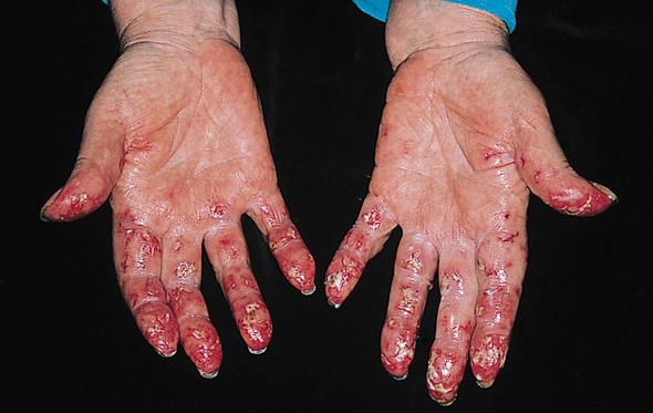 Chilblain Lupus Erythematosus