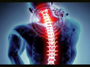 3 Exercise Protocol: Stiff Neck Pain Fixer