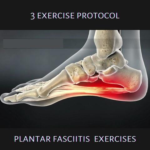 Exercise Protocols: Plantar Fasciitis