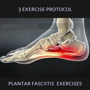 The 3 Exercise Protocol: Plantar Fasciitis