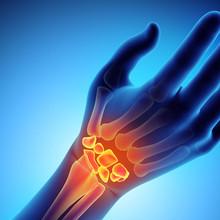 4 Exercise Protocol:  Wrist Pain Fixer