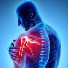Shoulder Pain: Presses & Planks