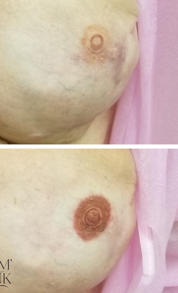Areola Touch-Up