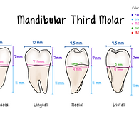 Mandibular Third Molar (5).png