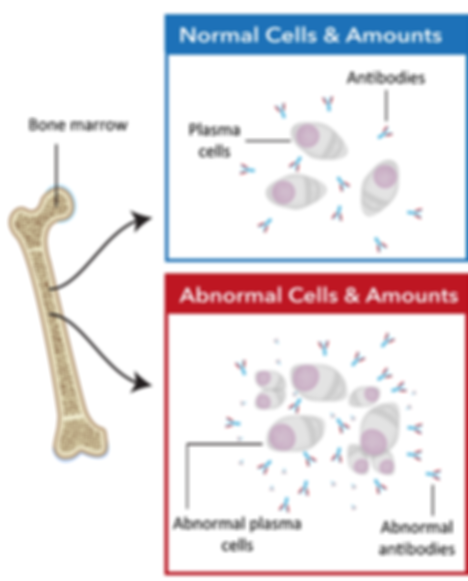 Diagram of bone marrow and normal cells vs abnormal cells