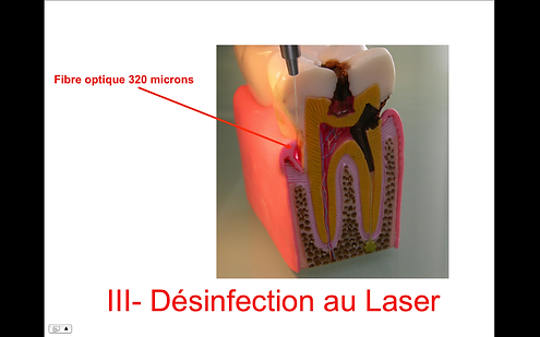 """Désinfection """"Laser assistée"""""""