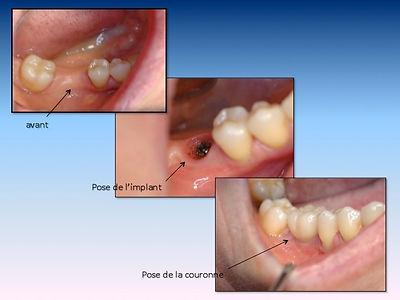 Couronne unitaire sur implant