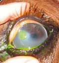 A descemetocele - the dark centre will not take up the fluorescence stain. this condition is amedical emergency.