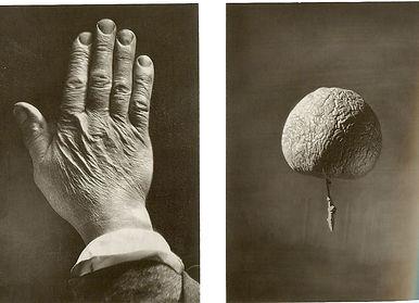 Back of hand and shrivelled apple.jpg