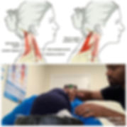 Do you suffer from forward head posture_