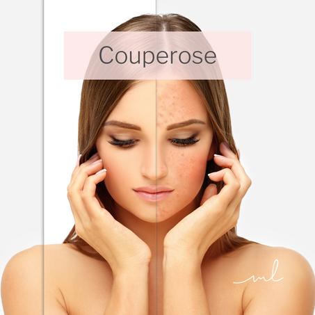 Couperose