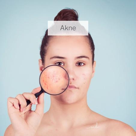 Akne - wie behandelt man Akne am Besten. Warum, wie lange und welches Hormon?
