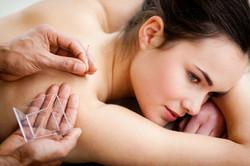 cityondemand-acupuncture-deals-near-me-8 (1)