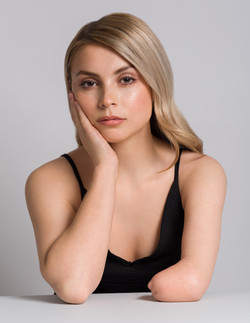 Gemma, Missing Limb, Zebedee Management,