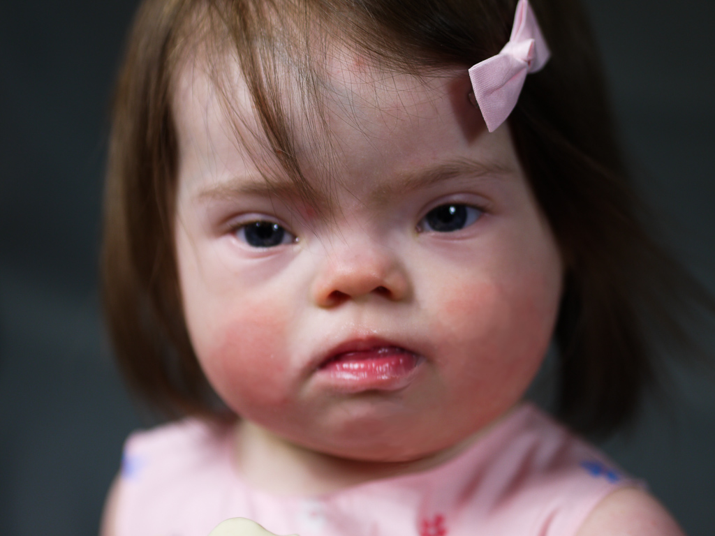 Anna , Down Syndrome, Zebedee Management
