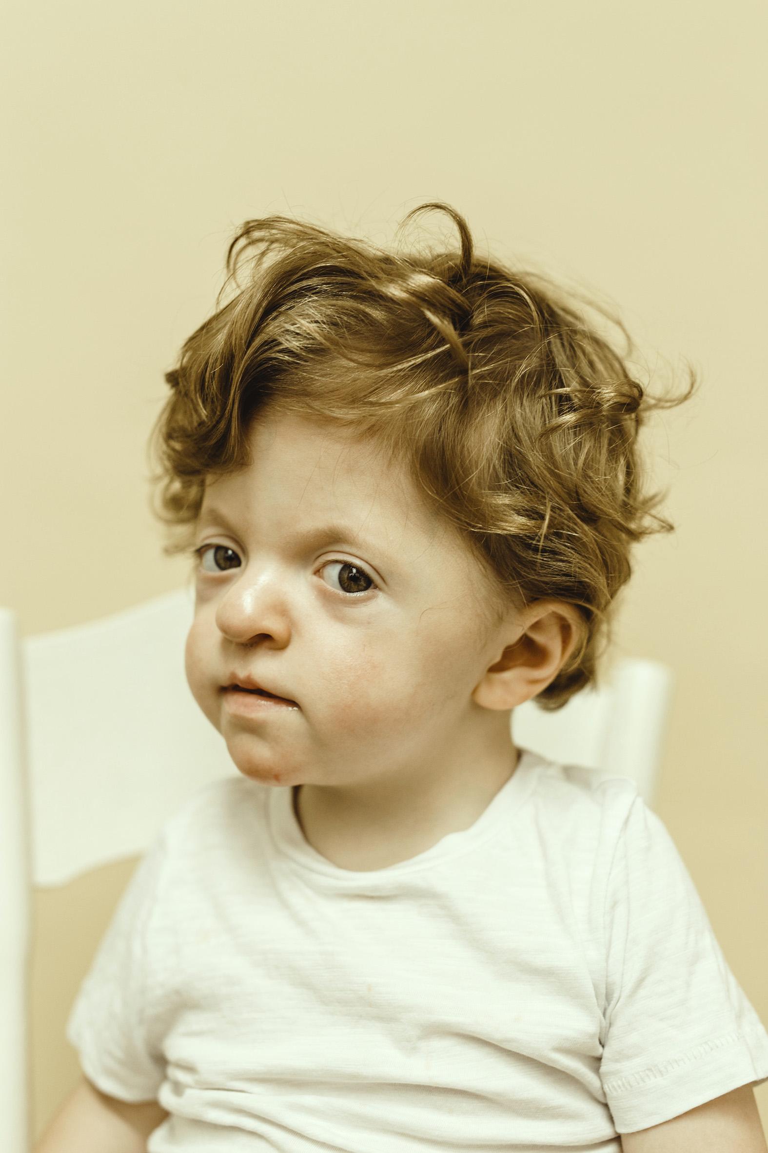 Teddy, Apert Syndrome, Zebedee Managemen
