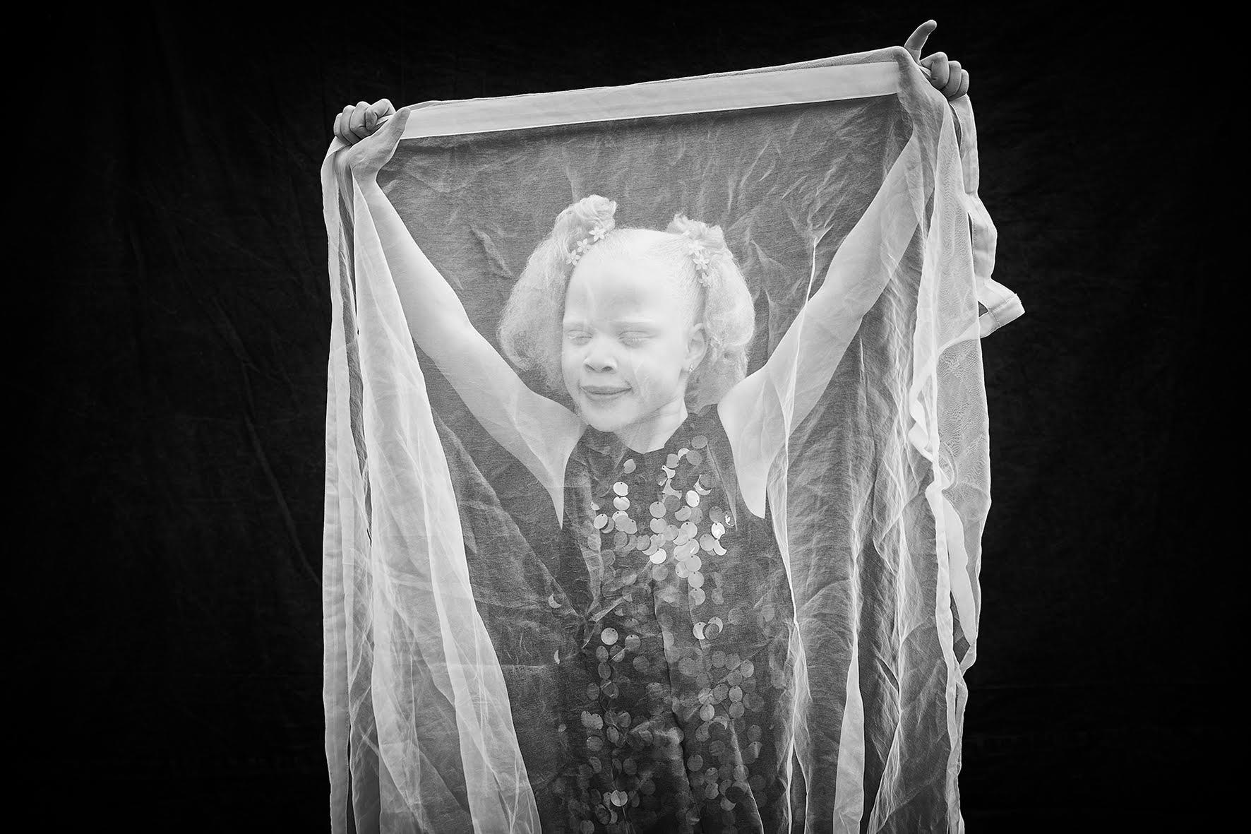 Nora, Ocular Albinism, Zebedee Managemen