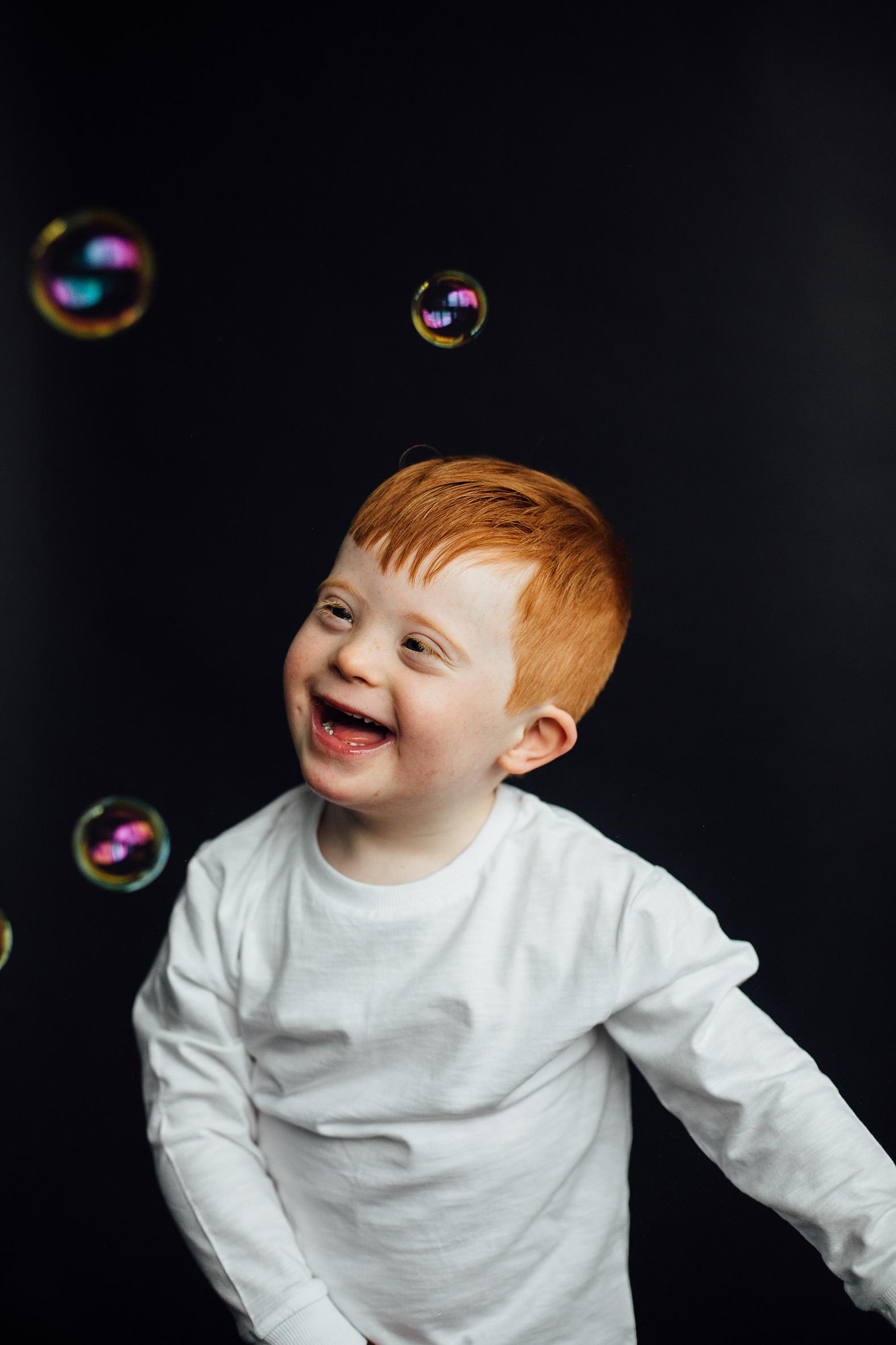 Joseph, Down Syndrome, Zebedee Managemen