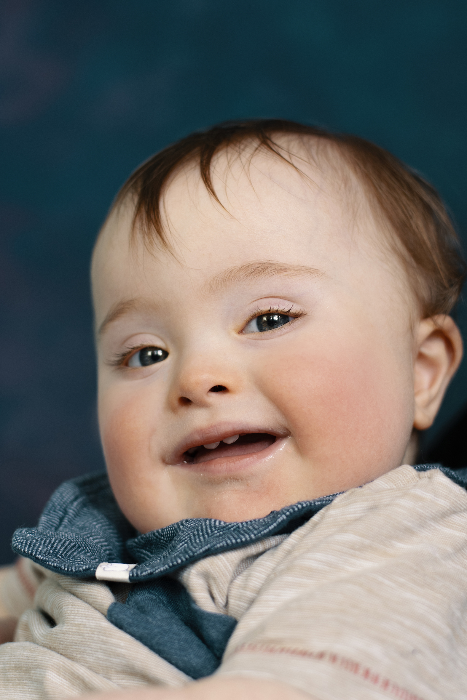 Elliott, Down Syndrome, Zebedee Management, disabled, model agency, disability, baby (2)