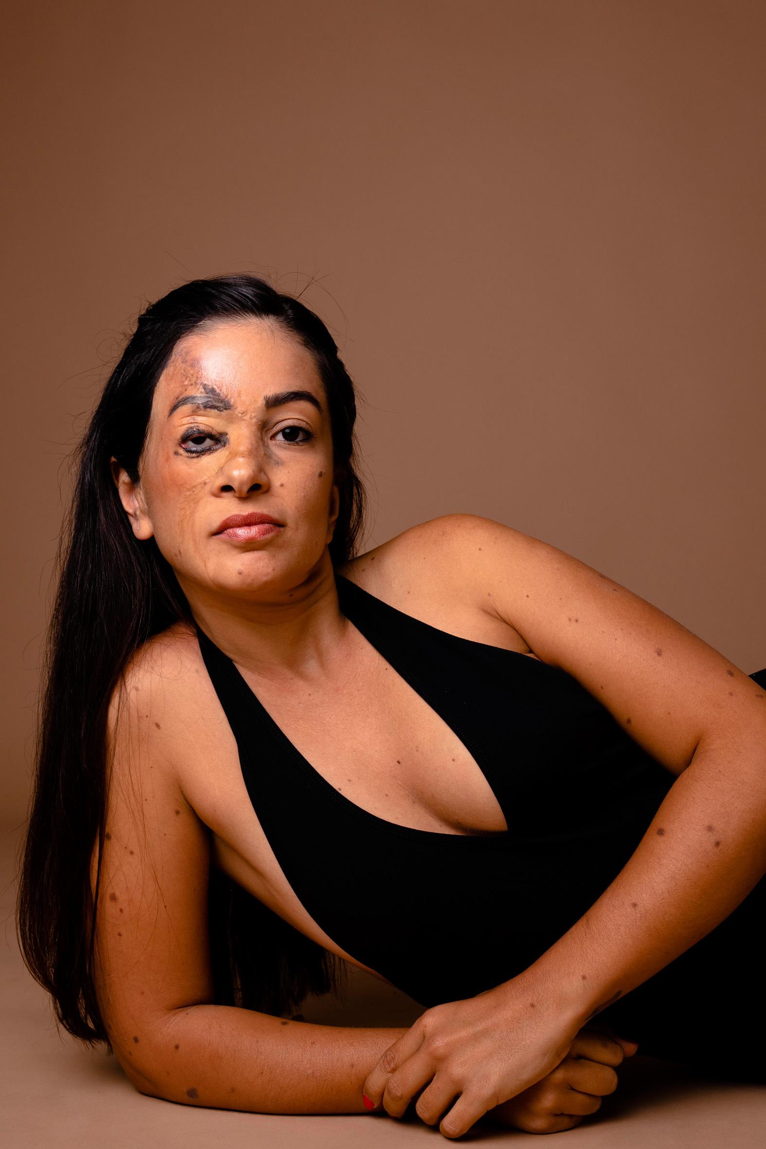 Nathalia, Zebedee Management, disabled,