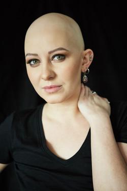 Isobel-Rose, Alopecia Universalis, Zebed