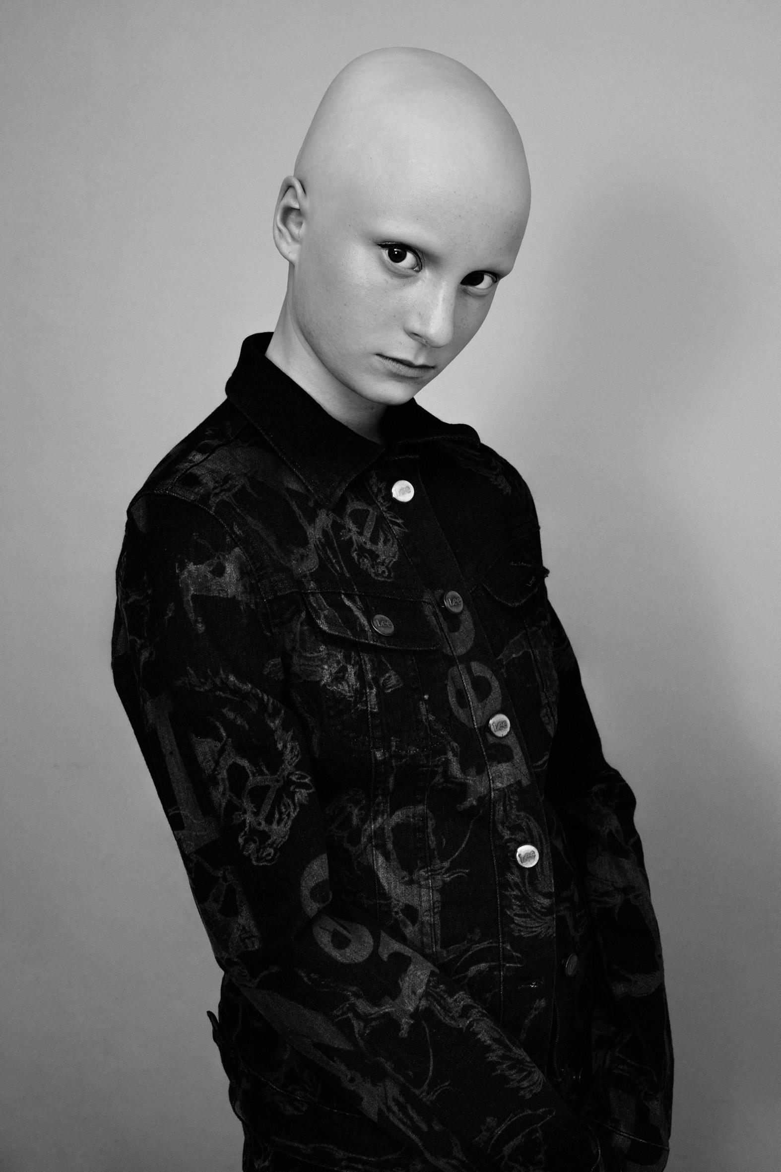 Freya, Alopecia, Zebedee Management, dis