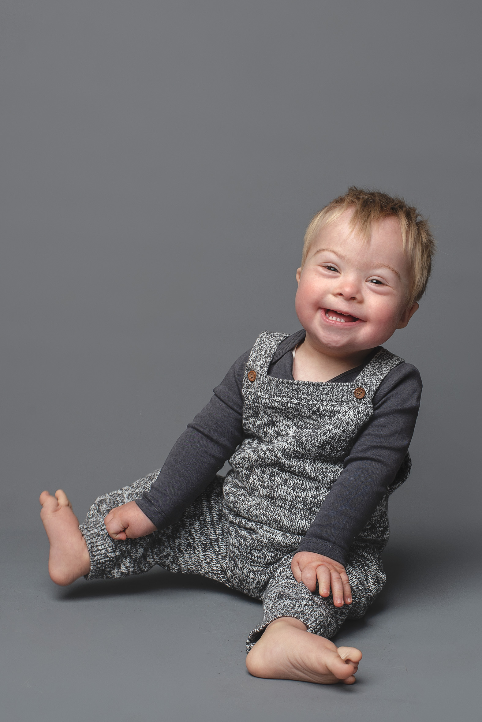 Albie J, Down Syndrome, Zebedee Manageme