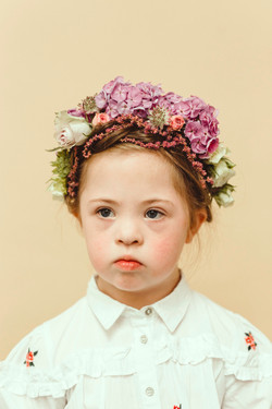 Chloe, Down Syndrome, Zebedee Management