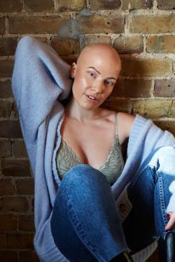 Jessica, Alopecia, Zebedee Management, d