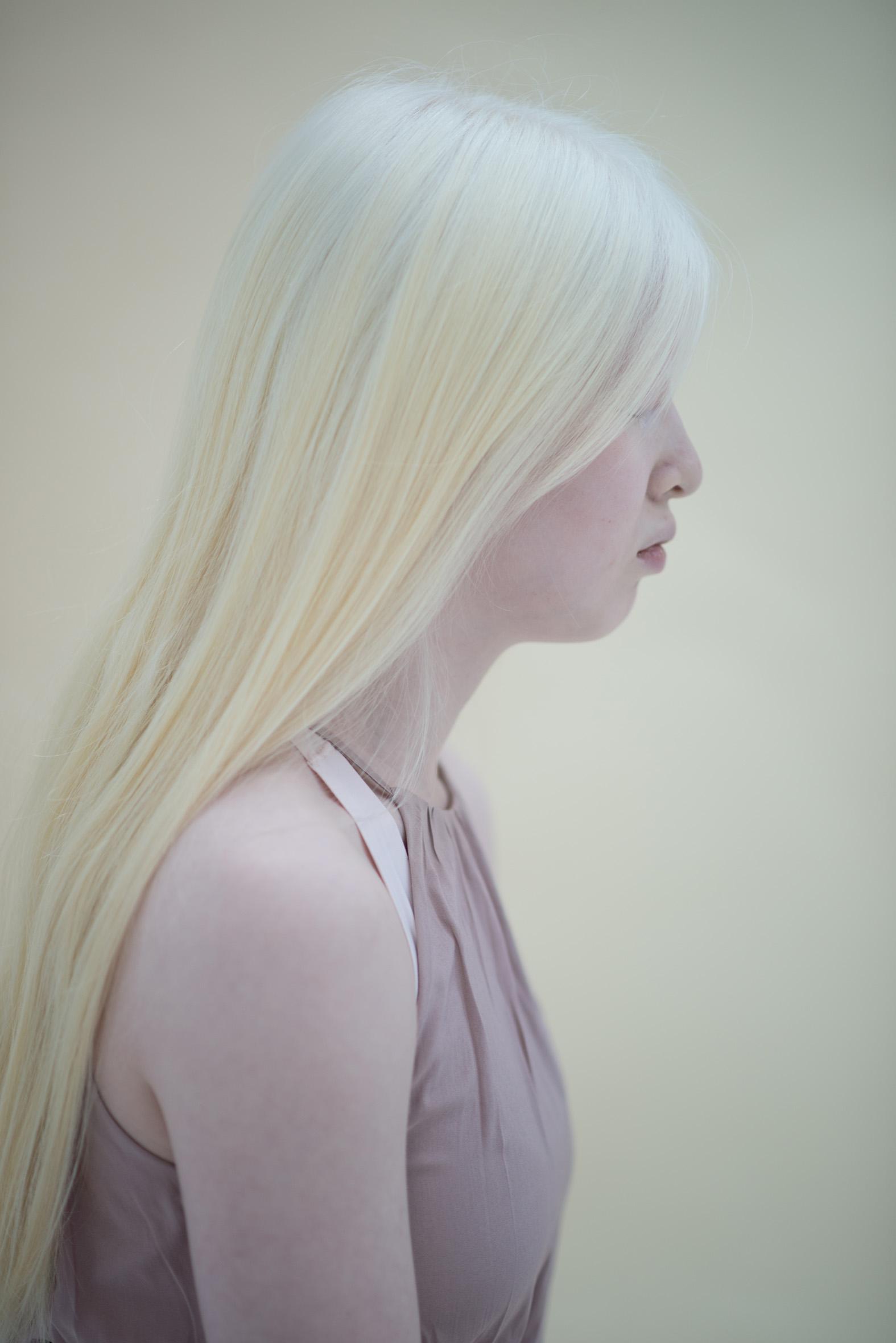 Xueli, Albinism, Zebedee Management, dis